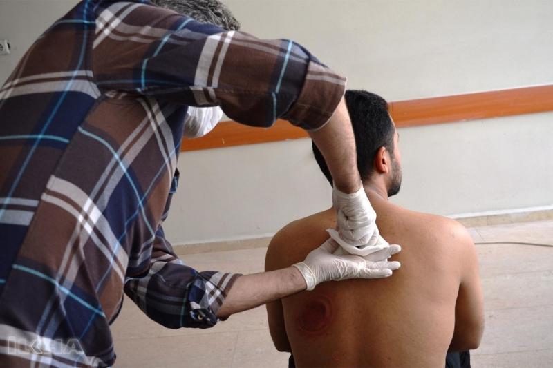 Şehir hastanesinde geleneksel tedavi yöntemleri